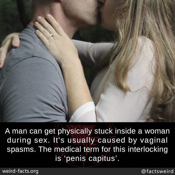 Penis caught inside vagina during sex