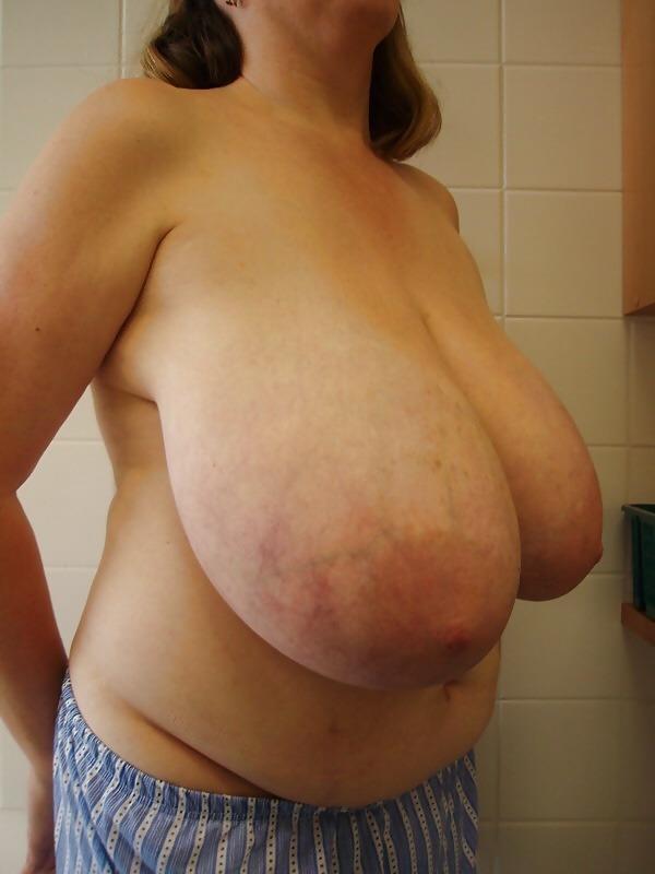 Boobs macromastia Browse Thousands