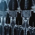Neurosurgery-A Comprehensive Review