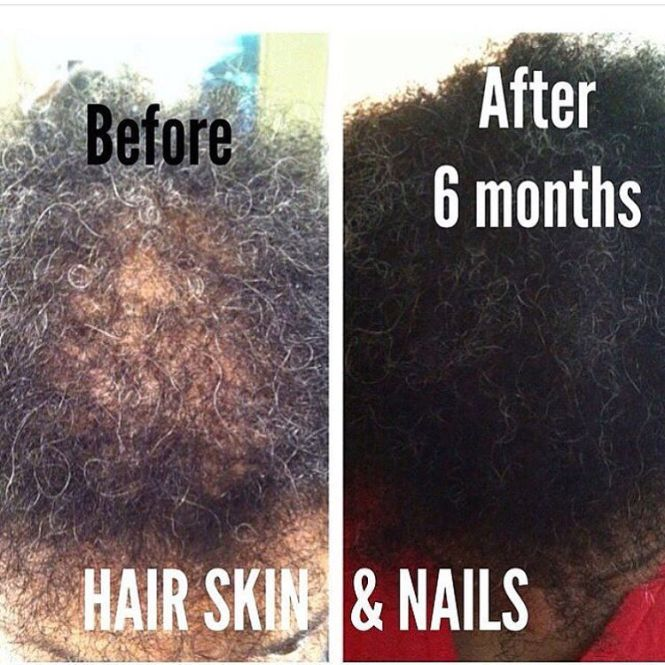 Hair Skin And Nails Results It Works - Best Skin In The Word 2018