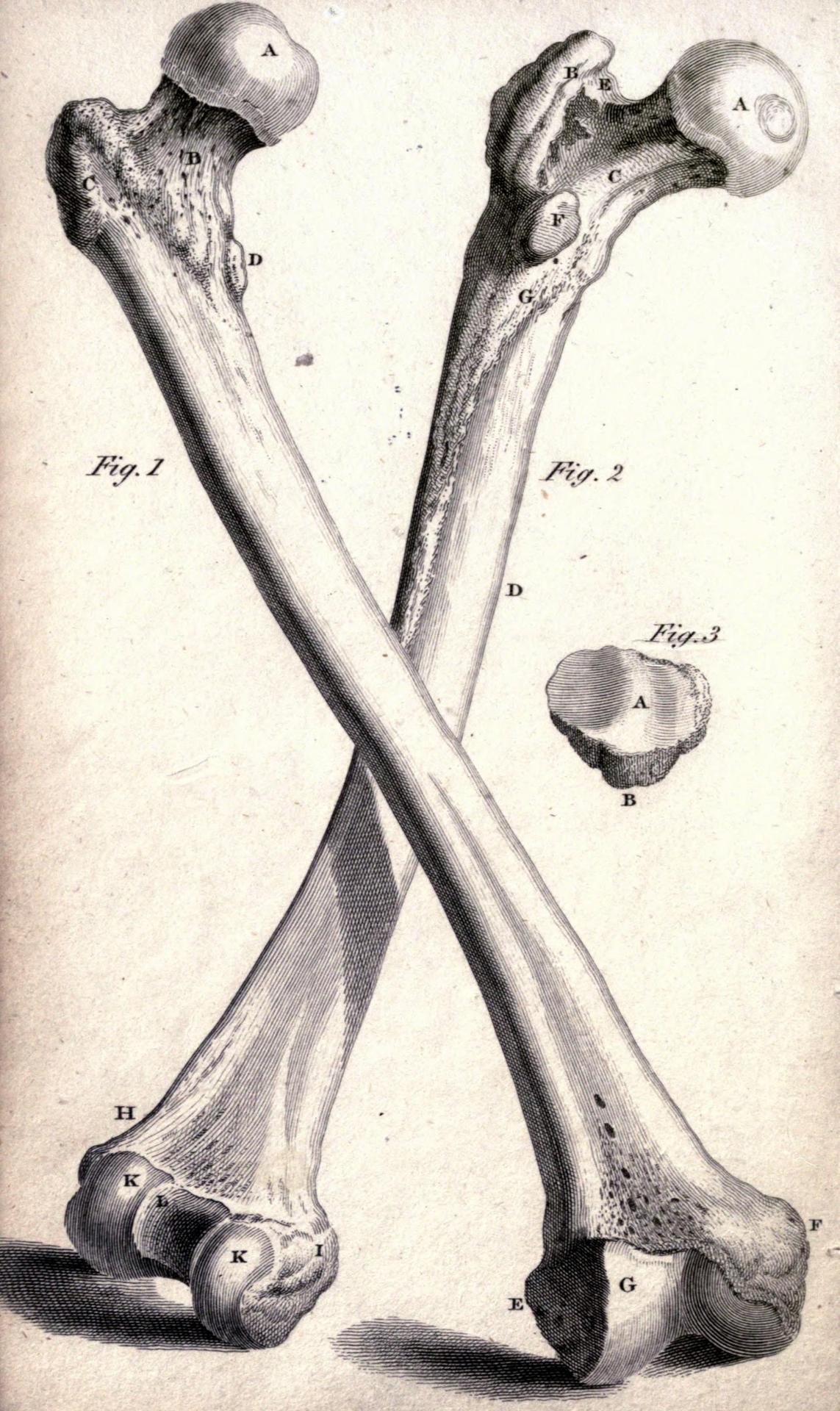 Fig 1 Front Side Of Os Femoris The Femur Bone