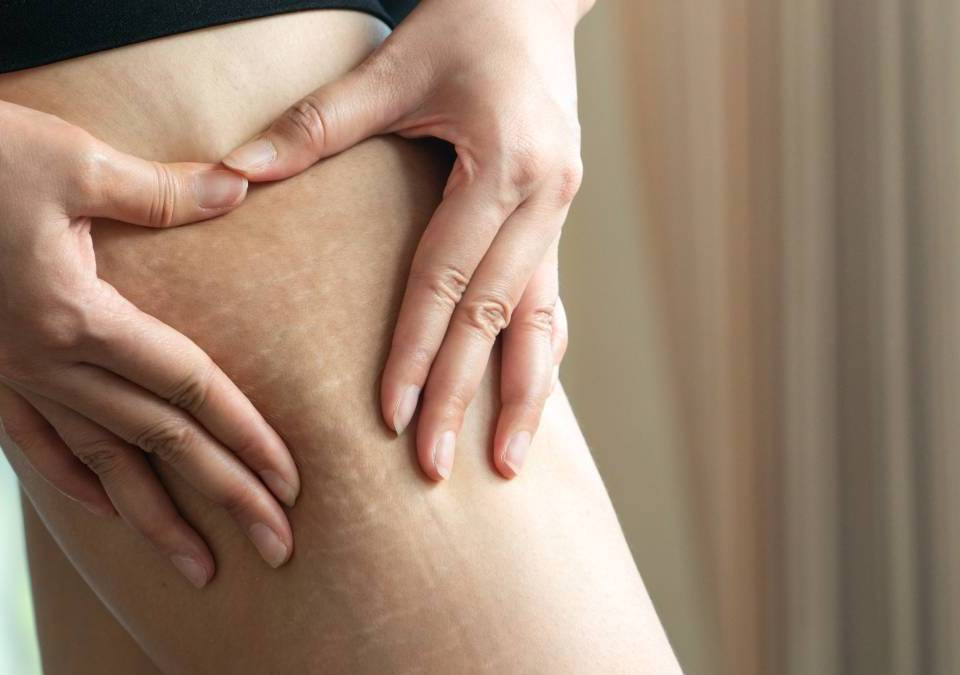 benefits of non-surgical treatments over plastic surgeries Remove Stretch Marks Without Any Surgery: Know How Stretch Mark Removal Treatment