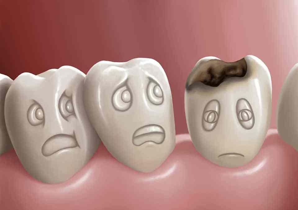 Cavities/Tooth Decay tooth cavit decay 7dmc dental 1