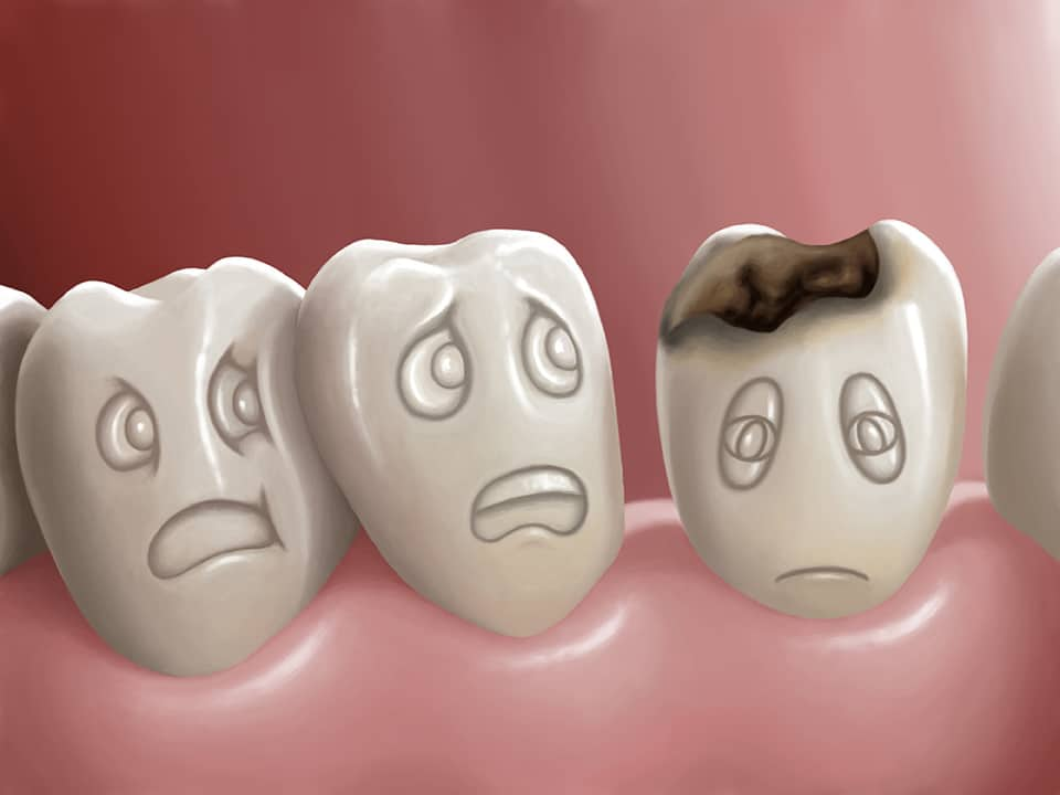 Cavities/Tooth Decay tooth cavit decay 7dmc dental 1