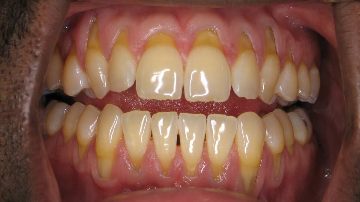 Receding Gums – Symptoms, Causes and Treatment Exposed Root