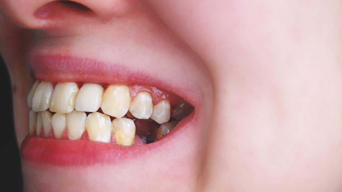 Receding Gums – Symptoms, Causes and Treatment Tooth Loss