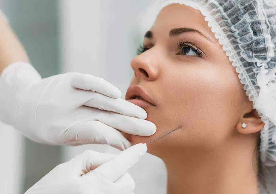 A Complete Guide to Using Threads for Face and Neck Lift threads face neck lift