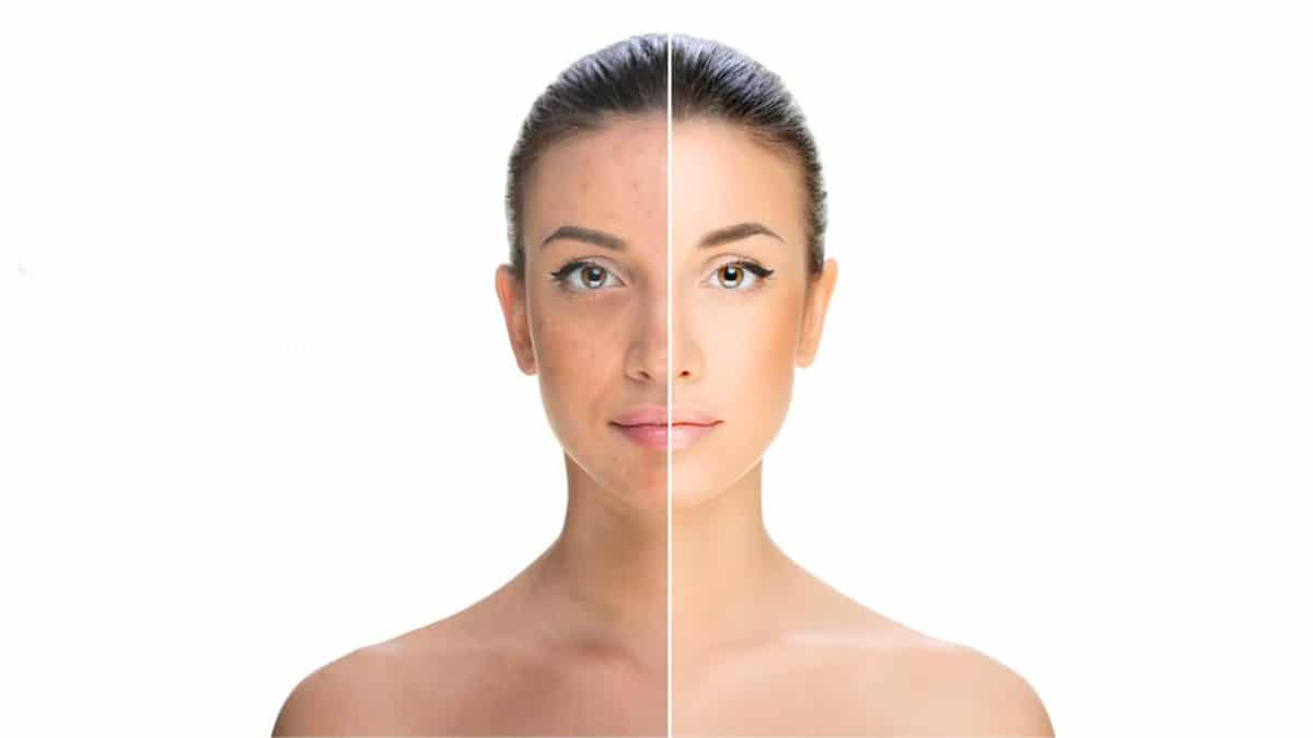 what is a chemical peel Chemical Peel for Acne Scars: Home vs Professional Assistance What are the Benefits of Chemical Peel