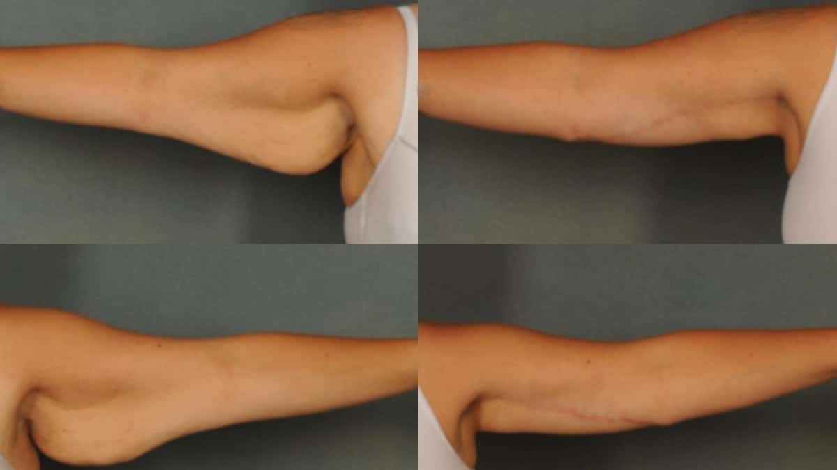 non surgical arm lift Using Threads for Arm Lifting What does the Procedure of Arm Lifting Involve
