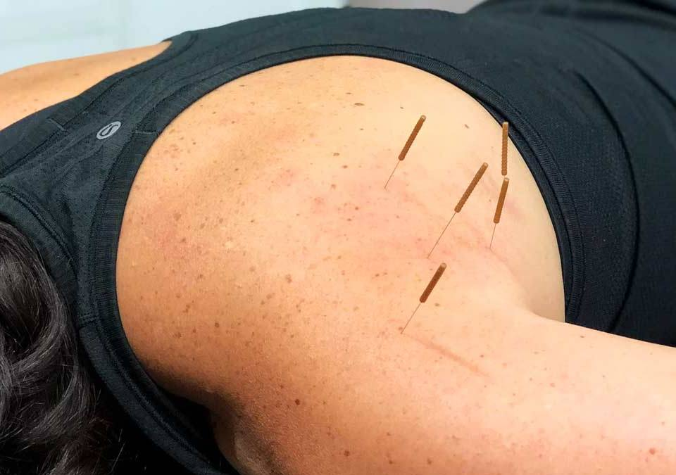 dry needling What is Dry Needling, and How Can 7DMC's Physiotherapists Help You? What is Dry Needling and How Can 7DMCs Physiotherapists Help You