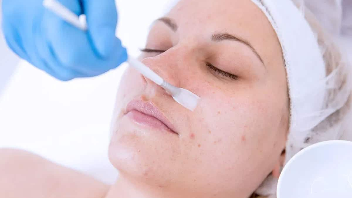 what is a chemical peel Chemical Peel for Acne Scars: Home vs Professional Assistance What is a Chemical Peel