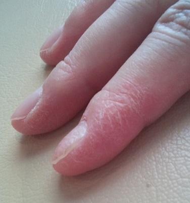 指 ひび割れ クリーム