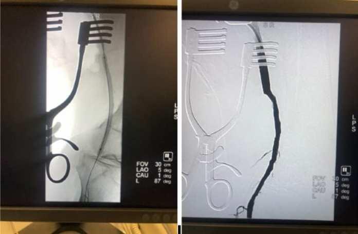 Врачи рязанской БСМП провели гибридную операцию, чтобы спасти пациенту ногу