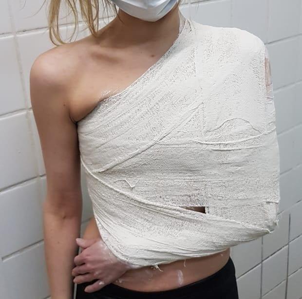 Из-за полученной травмы после падения на скользкой улице рязанка планирует судиться