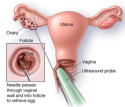 Egg Donation - Retrival - Ultrasound probe - surgery
