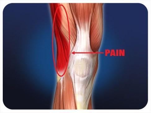 IT knee