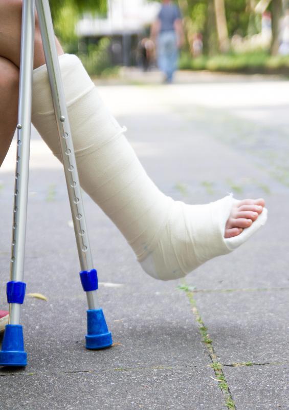 person-wearing-cast-on-leg-on-street