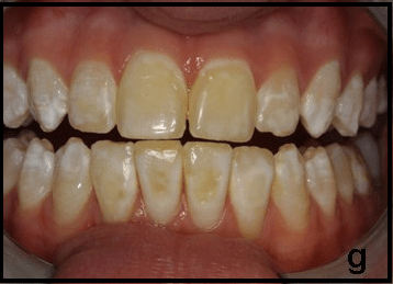 Photo of teeth that have brown staining on them caused by fluorosis
