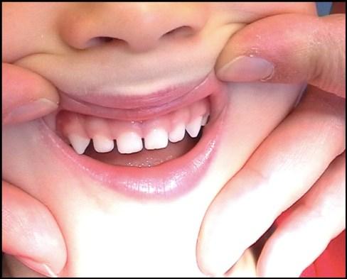 Example of milk teeth with gaps