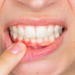 Gum Disease Associated With Increased Risk of Esophageal and Gastric Cancer