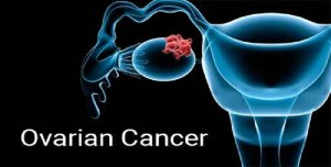 Link Between Ovarian Cancer and Blood Cells Explored