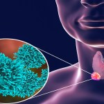 Targeted Treatment Tied to Longer Survival in Patients With Anaplastic Thyroid Cancer