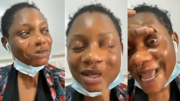 Girls please stop using contacts – Nigerian lady cries out after contact lens made her partially blind (Video)