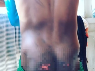 Boy, 12, unable to sit after allegedly being brutally flogged by a teacher in the seminary school he attends