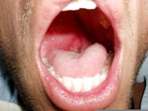 quinsy-symptoms-treatment-