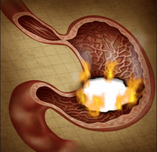 الوقاية من الحموضة في الحمل