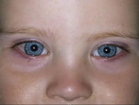 كيف أعرف إصابة طفلي بالعين ؟ كيف أحمي طفلي من الحسد؟