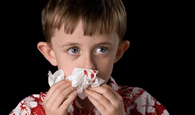 ما هي أعراض نزيف الأنف لدى الأطفال وما هي أسبابه؟