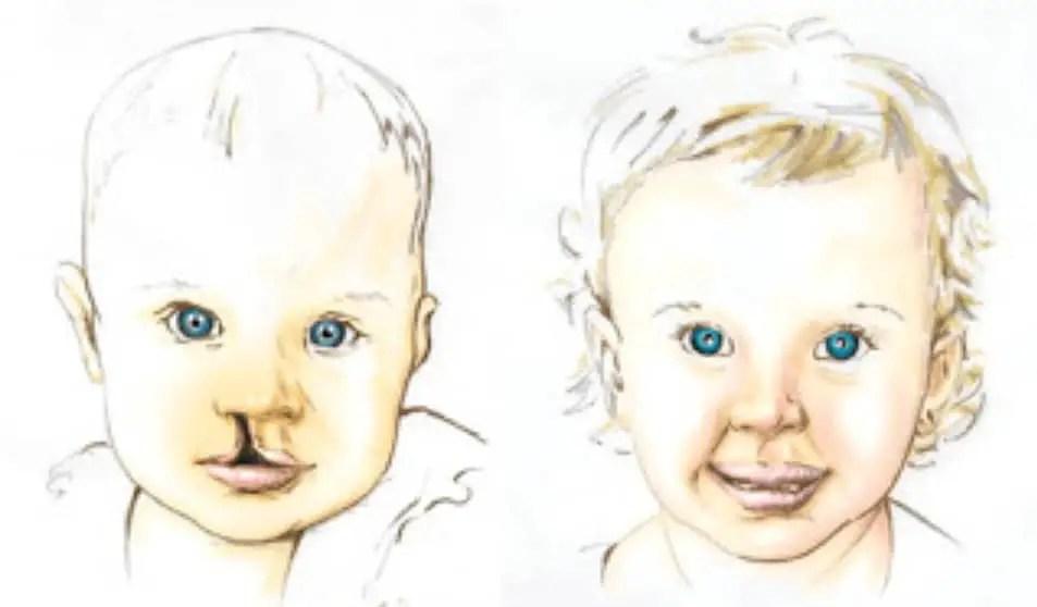 العيوب الخلقية لجوف الفم عند الأطفال أسبابها وطرق علاجها