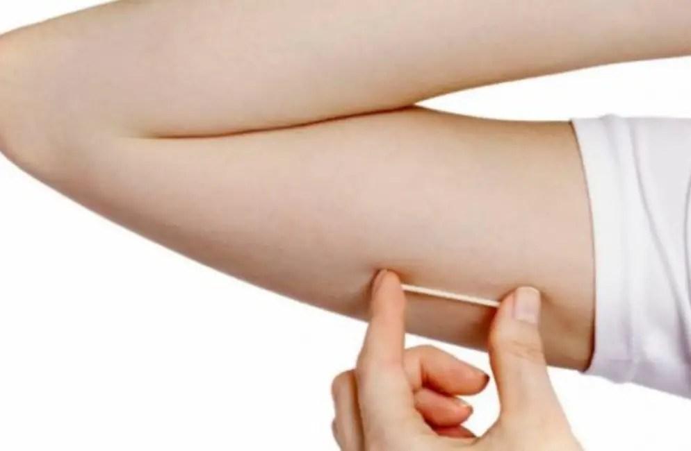 شريحة منع الحمل