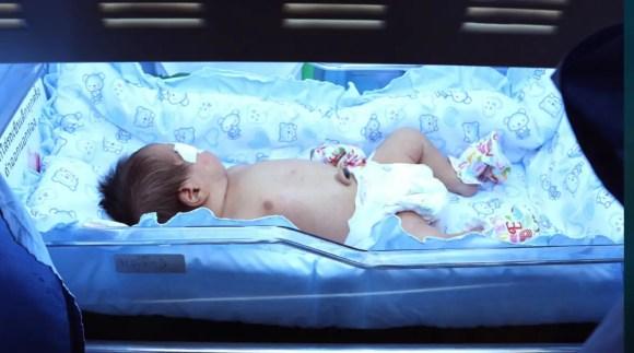 الصفراء عند حديثي الولادة .. ملف شامل