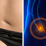 Appendix removal associated with development of Parkinson's disease- Health Research