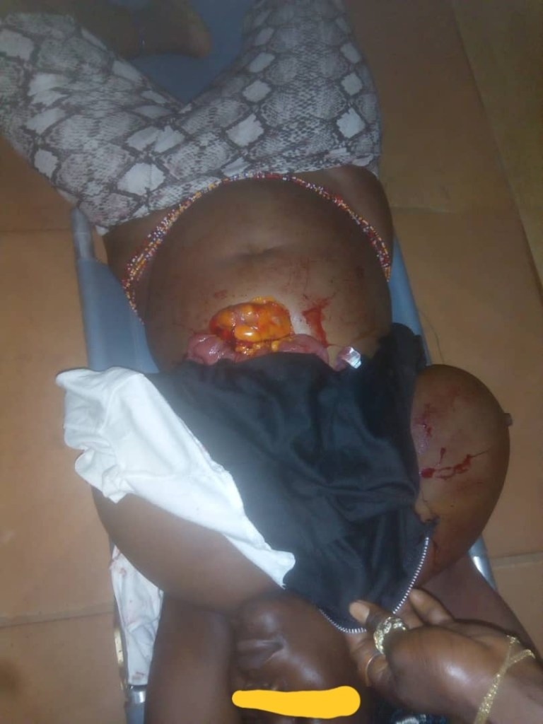 Anambra Police arrest man after he allegedly stabbed and attempted cutting a lady's breast for rituals 1
