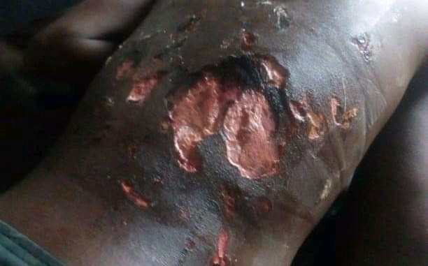 14-year old Anas in critical condition after suspected soldiers in Plateau state brutally tortured him claiming to 'Teach him a lesson'