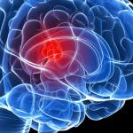 Brain cancer causes