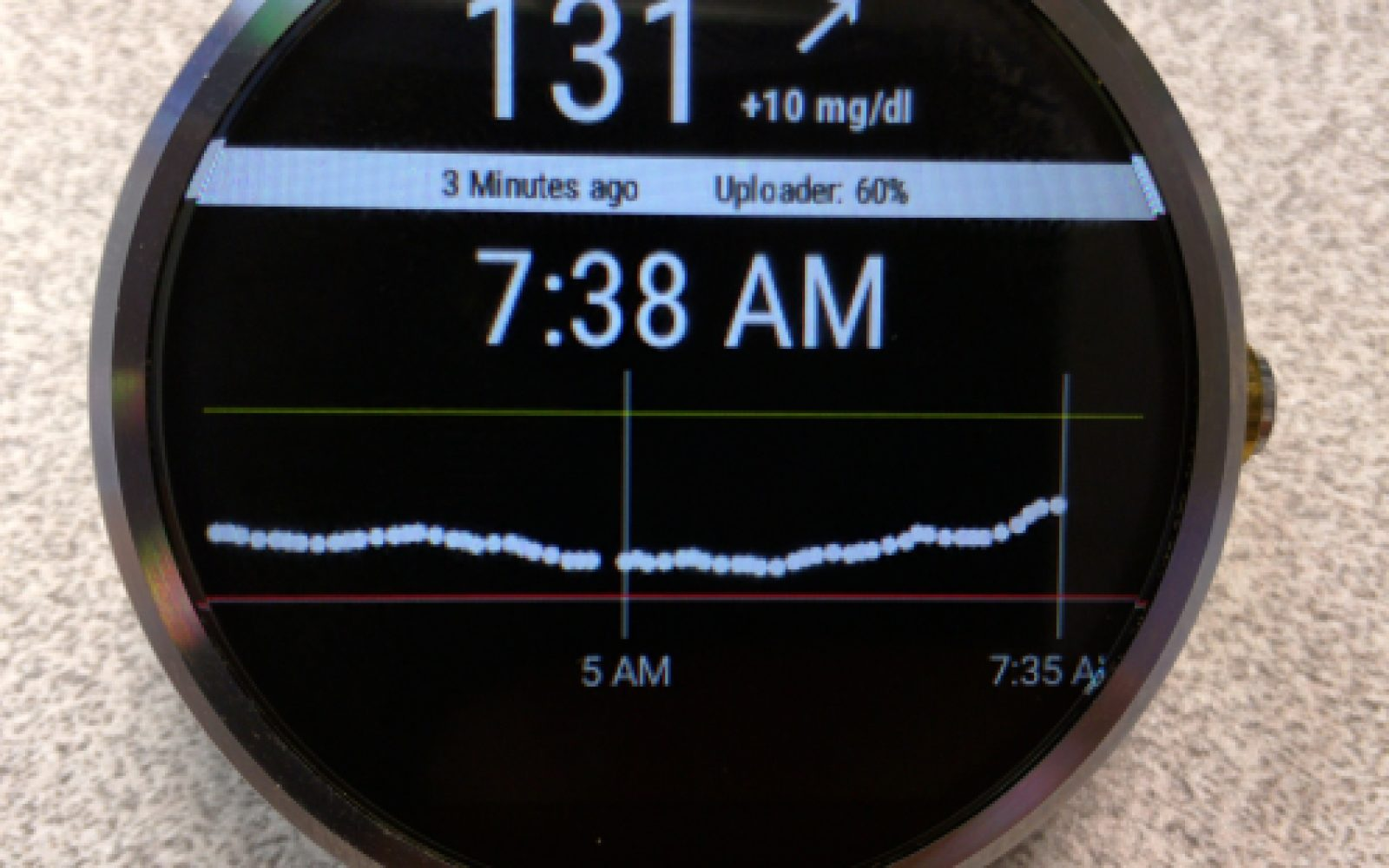 Developer builds a diabetes app for continuous blood glucose
