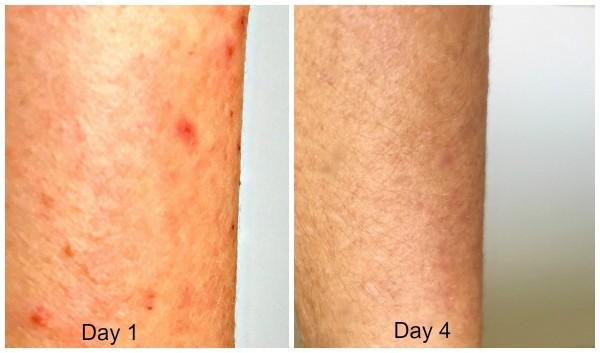 AmLactin for extremely dry skin