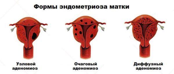 Forme de endometrioză a uterului