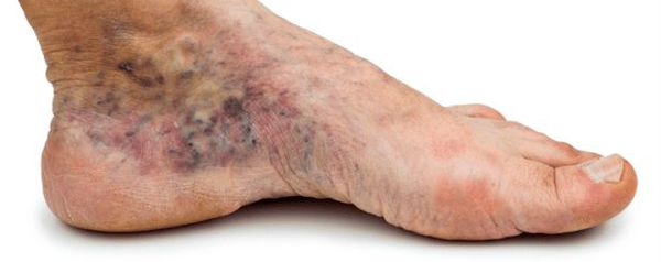 The emergence of bruises under nails