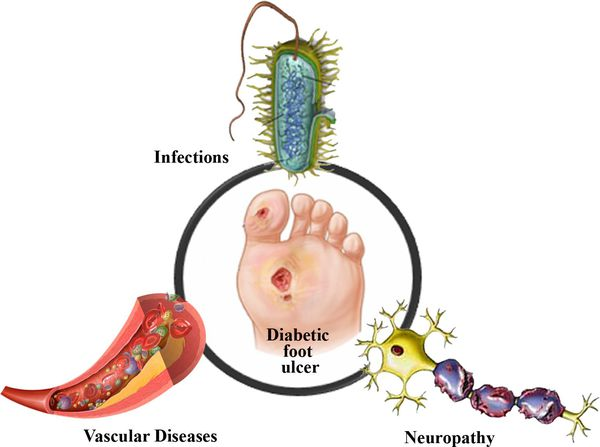 Stages of development of diabetic neuropathy