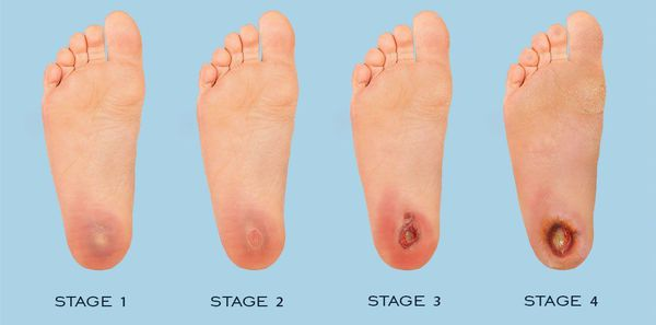 Стадии развития синдрома диабетической стопы