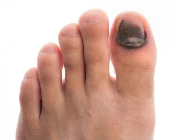 Peeling of the skin with a diabetic foot