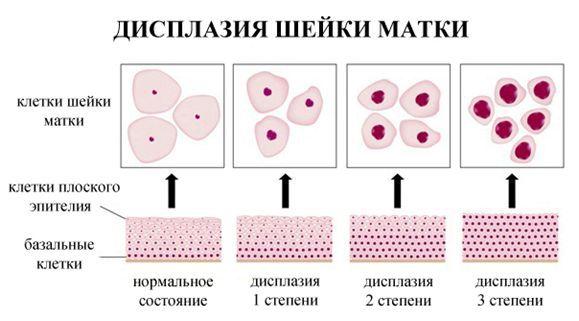 Kohdunkaulan dysplasian patogeneesi