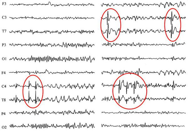 An example of EEG data: red circles highlighted zones of pathological epileptiform activity