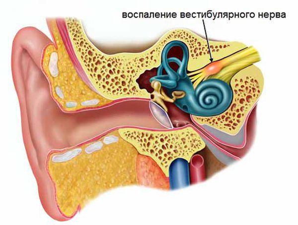 Воспаление вестибулярного нерва