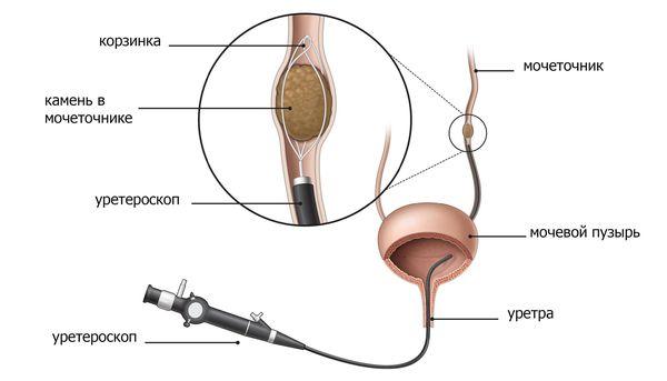 Извлечение камня уретроскопом